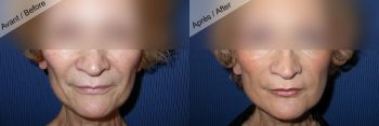 Lipomodelage des joues