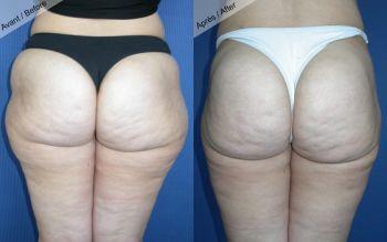 Liposuccion cuisses et hanches
