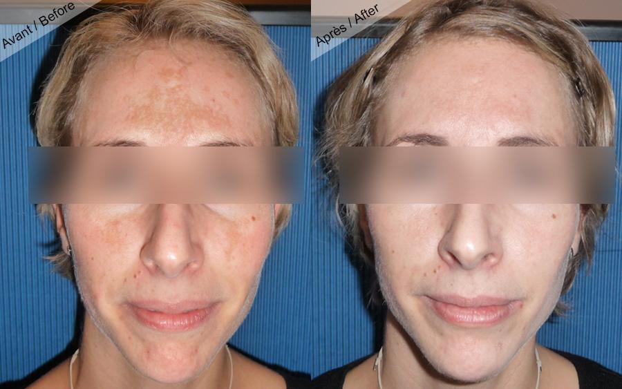 Fabuleux Résultats peeling visage, taches brunes. Photos avant après  KF85