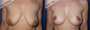 Prothèse mammaire et lifting cicatrice en T