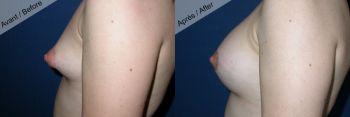 Seins tubéreux et prothèses mammaires