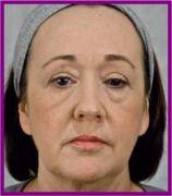 technique de rajeunissement du visage l avantage des traitements combin s par acide. Black Bedroom Furniture Sets. Home Design Ideas