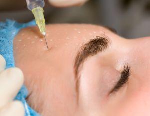 La toxine botulique (Botox®), une technique légère et sûre