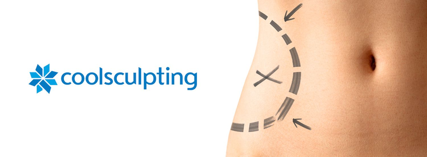 Coolsculpting Avignon