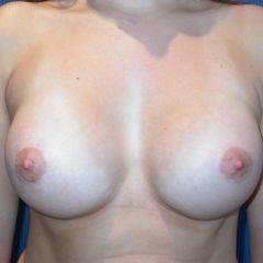 Augmentation mammaire Avignon après