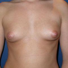 Augmentation mammaire Avignon avant