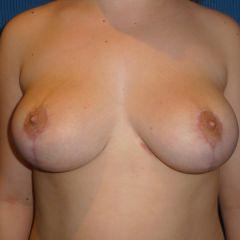 Réduction mammaire Avignon après