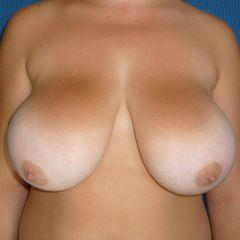 Réduction mammaire Avignon avant