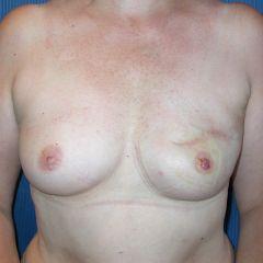 Reconstruction mammaire Avignon après