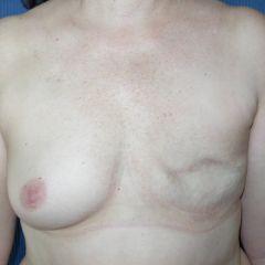 Reconstruction mammaire Avignon avant