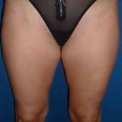 Coolsculpting cuisses avant