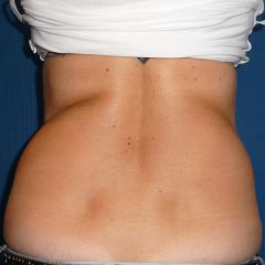 Coolsculpting hanches avant